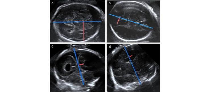 Ventriculomegalia en el feto